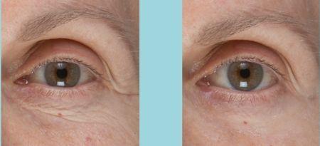 биоревитализация после 40 фото до и после