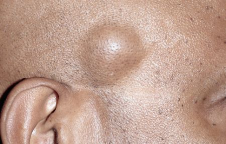 жировик на лице