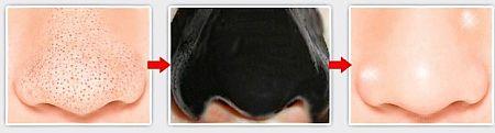 маска для лица с углем