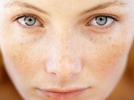 Отбеливающие маски для лица – лучшие домашние рецепты