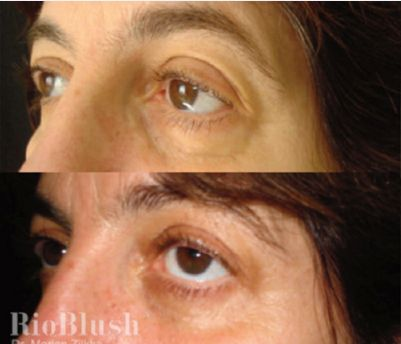 Карбокситерапия что это такое, фото До и После