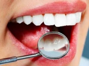 Самые популярные услуги в стоматологических кабинетах в 2019 году