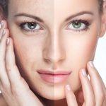 Рекомендации по уходу за кожей лица: как выглядеть моложе