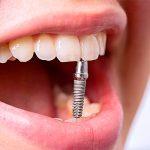 Какое количество имплантов вживляют в разных клинических случаях