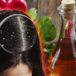 Возвращение забытого тренда: яблочный уксус для волос