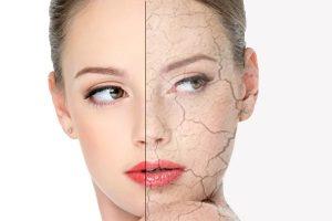 Особенности сухого типа кожи