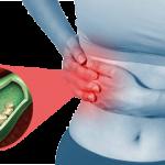 Желчекаменная болезнь — симптомы, диагностика и лечение