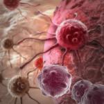 Израильтяне нашли революционное средство против рака