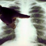 Причины, симптомы и лечение рака легких