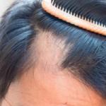Китайцы разработали новый метод по восстановлению волос